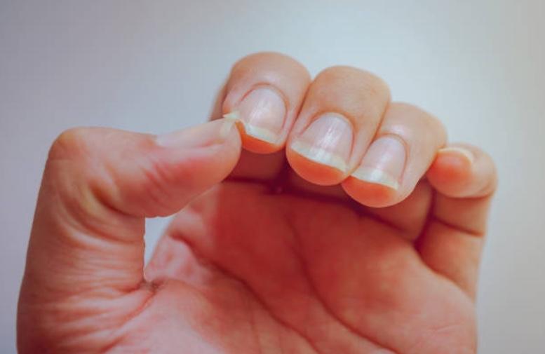 コラーゲンが不足すると、爪の弾力が弱くなります